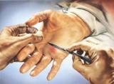 Chirurgia della mano e Microchirurgia