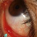 http://okmedicina.it/images/groupphotos/18/204/thumb_bc5e7b4a024b5fcc1c34afea.jpg