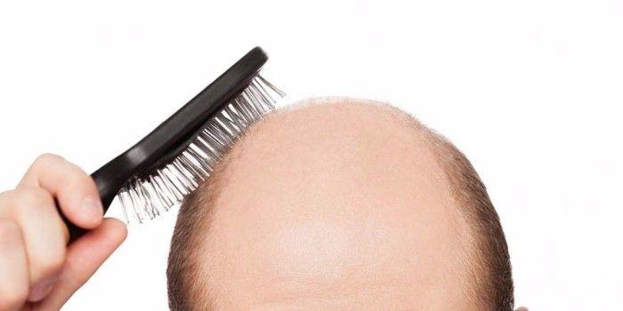 La calvizia si può sconfiggere. Questo è quanto afferma un team di ricercatori della Columbia University di New York , i quali hanno scoperto l'efficacia di due molecola in grado di risvegliare i follicoli piliferi inattivi e di stimolare quindi la crescita dei capelli.<br />Gli scienziati, stavano studiando i meccanismi alla base dell'alopecia areata, condizione provocata da un comportamento anomalo del sistema immunitario che aggredisce i follicoli piliferi. Per bloccare questo processo, i medici hanno somministrato ad alcuni topi affetti dalla condizione due inibitori della Janus chinasi: il tofacitinib e il ruxolitinib. La sperimentazione ha dimostrato che la crescita del pelo era maggiore quando gli inibitori erano somministrati per via topica.<br />www.italiasalute.it