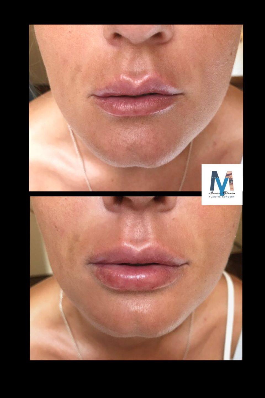 Lips revolumizing 3D definition! Un iniezione errata di filler (foto pre) conferisce alle labbra un effetto estremamente sbilanciato, asimmetrico, rigido ed innaturale, con presenza di granulomi all'interno delle mucose. Le labbra devono essere morbide e NATURALI sia in fase statica che dinamica indipendentemente dal volume scelto! Per info 3924180656 ylenia.bevelacqua@gmail.com www.myplasticsurgery.it