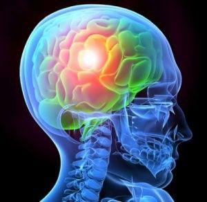 Al contrario di quanto si pensa, i traumi cranici, possono lasciare conseguenze a lungo termine , aumentando ad esempio il rischio di Alzheimer. A testimoniarlo, è un nuovo studio dell'Imperial College di Londra pubblicato su Neurology secondo cui il periodo di demenza senile attraverso la formazione di placche amiloidi nel cervello è accentuato dai traumi subiti dalla testa. Le analisi che hanno coinvolto un campione di soggetti sani,malati di Alzheimer e in buona salute ma con un trauma cranico subito in passato, hanno dimostrato che anche a distanza di 10 anni si può verificare la presenza di quelle placche già riscontrate subito dopo l'incidente.<br />www.italiasalute.it