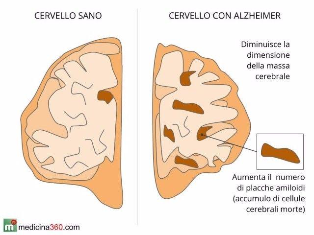Un nuovo trial clinico proverà a trovare una soluzione per la cura dell'Alzheimer.<br />Ad affermarlo sono i ricercatori della University of California di San Diego che somministreranno a 24 adulti con sindrome di Down un vaccino ideato per evitare l'accumulo di placche di proteina beta-amiloide nel cervello. Il vaccino si chiama ACI-24 e stimola la produzione di anticorpi diretti contro gli accumuli tossici del peptide beta-amiloide. I ricercatori, hanno scelto i pazienti Down perchè chi è portatore di tale sindrome, accusa anche la formazione precoce nel cervello di frammenti della proteina, mostrando un rischio di insorgenza dell' Alzheimer tre volte più alto. www.italiasalute.it