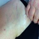"""CHIRURGIA PROTESICA SONDALO Via mininvasiva anteriore """"bikini"""" per protesi d'anca. Cicatrice a sei mesi dall'intervento. Pratichiamo questa metodica ormai da tre anni. Risultati molto soddisfacenti."""