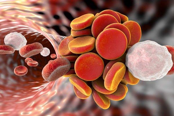 Cancro e Trombosi una correlazione rischiosa ancra poco conosciuta