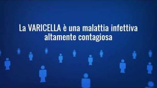 Varicella, un'infografica