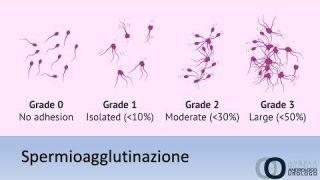 Spermioagglutinazione Cos'è e come si cura . La lettura dello spermiogramma