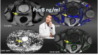 Dubbio diagnostico : Psa alto e risonanza magnetica prostatica multiparametrica negativa, che fare ?a titolo
