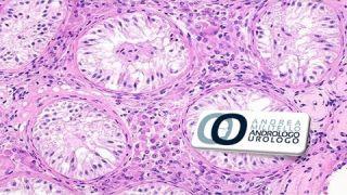 Sindrome a sole cellule del Sertoli. Azoospermia. Cura Infertilità maschile Roma Milano Cosenza
